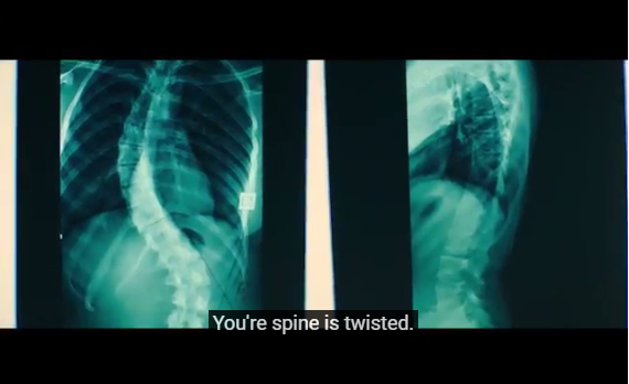 "Screenshot of video with captions. Video shows image of x-rays of a person's back. Captions say ""You're spine is twisted."""